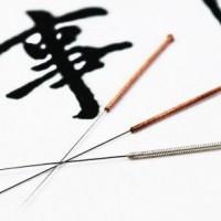 Du kan få behandlet menstruationssmerter med akupunktur